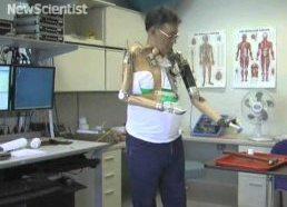 Bioninė ranka - pagalba žmonėms su amputuotomis galūnėmis